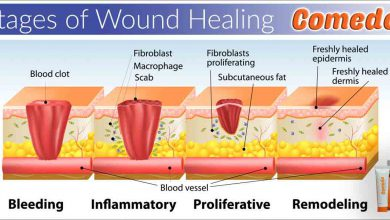 Photo of role of hyaluronic acid in wound healing